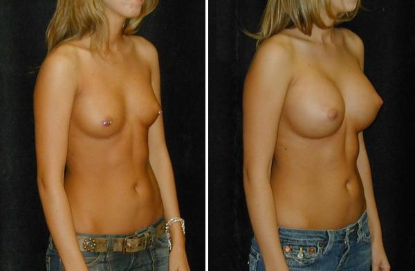 【偽乳注意】「なんということでしょう」匠が作った偽乳ビフォーアフター画像貼ってくwwwwwwwwwwwwww(画像あり)・3枚目