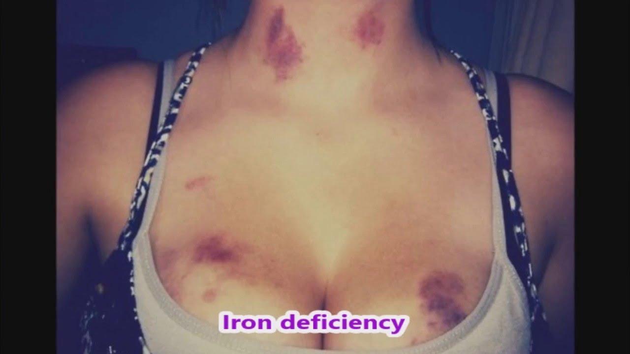 【閲覧注意】DVを受けた女性の身体をご覧下さい。。。(画像17枚)・14枚目