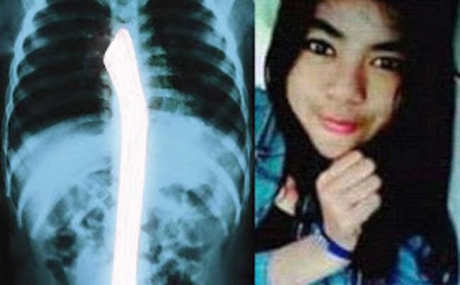 【閲覧注意】インドネシアの少女(18)マンコを破壊され発見される・・・(画像あり)・2枚目