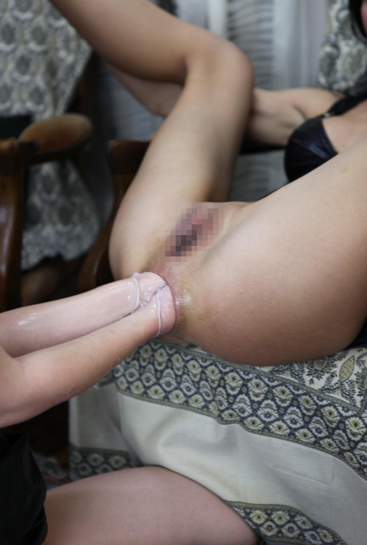 【※穴拡張】拳をブチ込むフィストファックに慣れてしまった女の末路・・・(画像あり)・13枚目