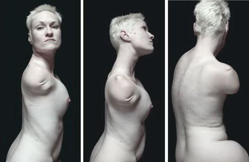 【閲覧注意】四肢切断(ダルマ)女のエロ画像、闇深すぎ・・・(画像あり)・13枚目
