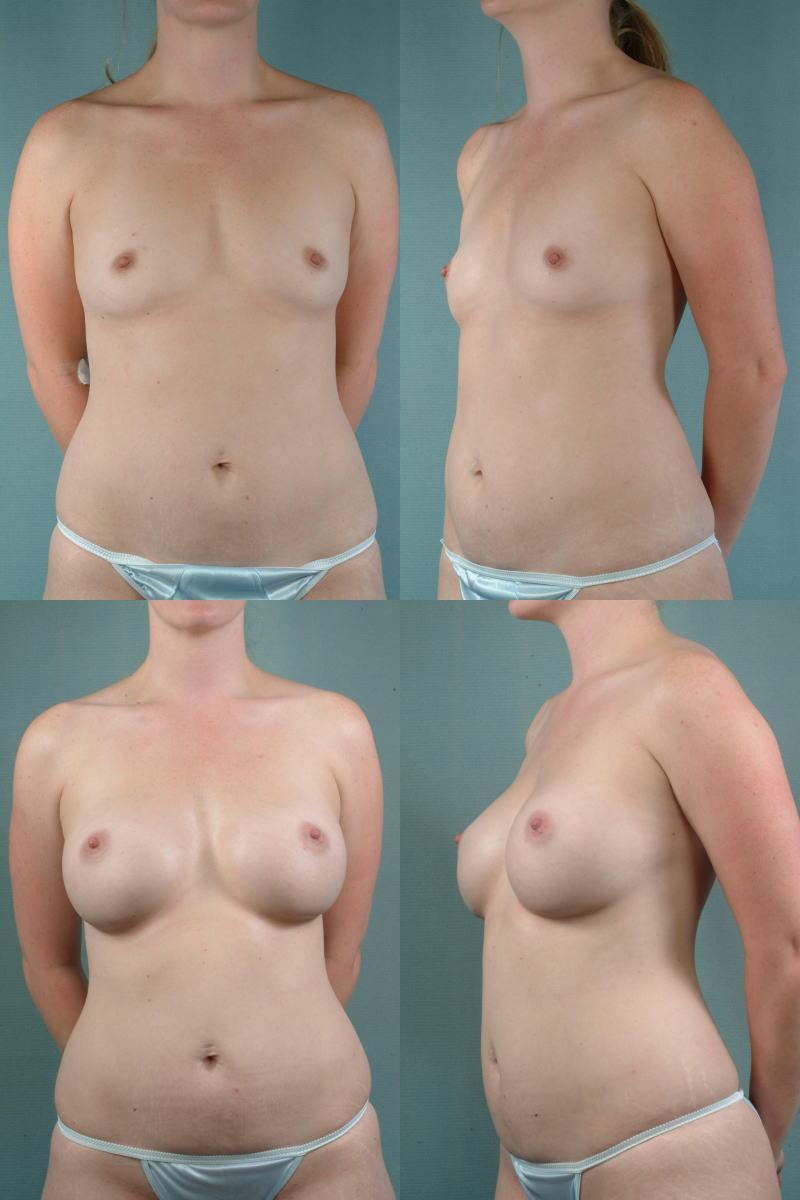 【衝撃】豊胸手術のビフォーアフターの比較。マジで自由自在なんやなwwwwwwwwwwww(画像あり)・1枚目