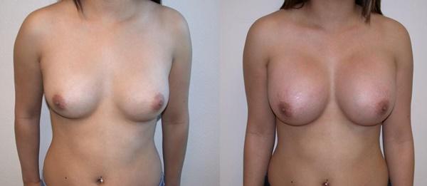 【衝撃】豊胸手術のビフォーアフターの比較。マジで自由自在なんやなwwwwwwwwwwww(画像あり)・8枚目