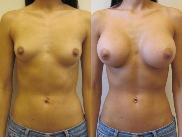 【衝撃】豊胸手術のビフォーアフターの比較。マジで自由自在なんやなwwwwwwwwwwww(画像あり)・9枚目