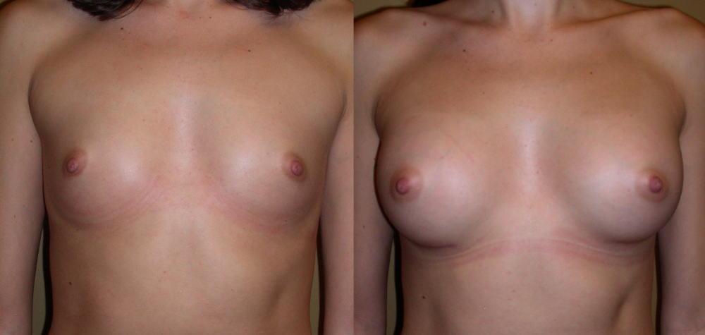 【衝撃】豊胸手術のビフォーアフターの比較。マジで自由自在なんやなwwwwwwwwwwww(画像あり)・10枚目