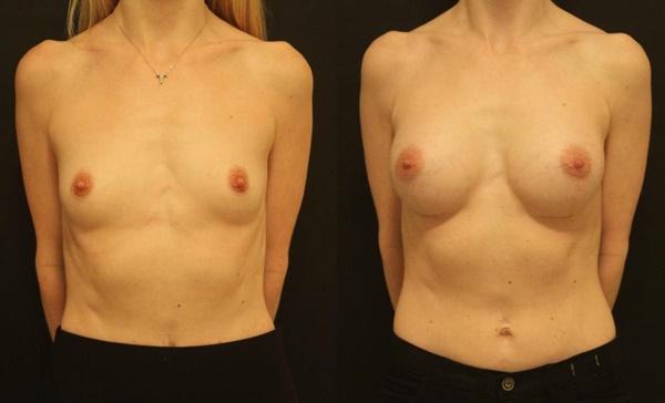 【衝撃】豊胸手術のビフォーアフターの比較。マジで自由自在なんやなwwwwwwwwwwww(画像あり)・11枚目