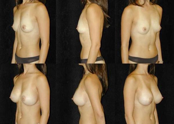 【衝撃】豊胸手術のビフォーアフターの比較。マジで自由自在なんやなwwwwwwwwwwww(画像あり)・13枚目