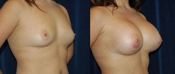 【衝撃】豊胸手術のビフォーアフターの比較。マジで自由自在なんやなwwwwwwwwwwww(画像あり)・14枚目
