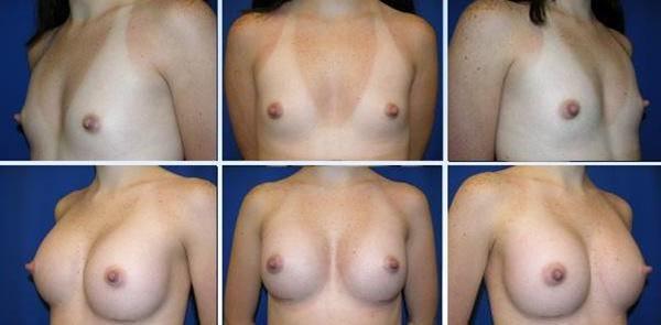 【衝撃】豊胸手術のビフォーアフターの比較。マジで自由自在なんやなwwwwwwwwwwww(画像あり)・15枚目