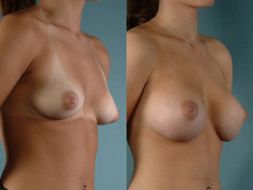 【衝撃】豊胸手術のビフォーアフターの比較。マジで自由自在なんやなwwwwwwwwwwww(画像あり)・16枚目