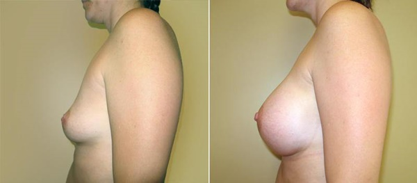 【衝撃】豊胸手術のビフォーアフターの比較。マジで自由自在なんやなwwwwwwwwwwww(画像あり)・17枚目