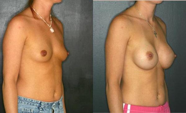 【衝撃】豊胸手術のビフォーアフターの比較。マジで自由自在なんやなwwwwwwwwwwww(画像あり)・19枚目