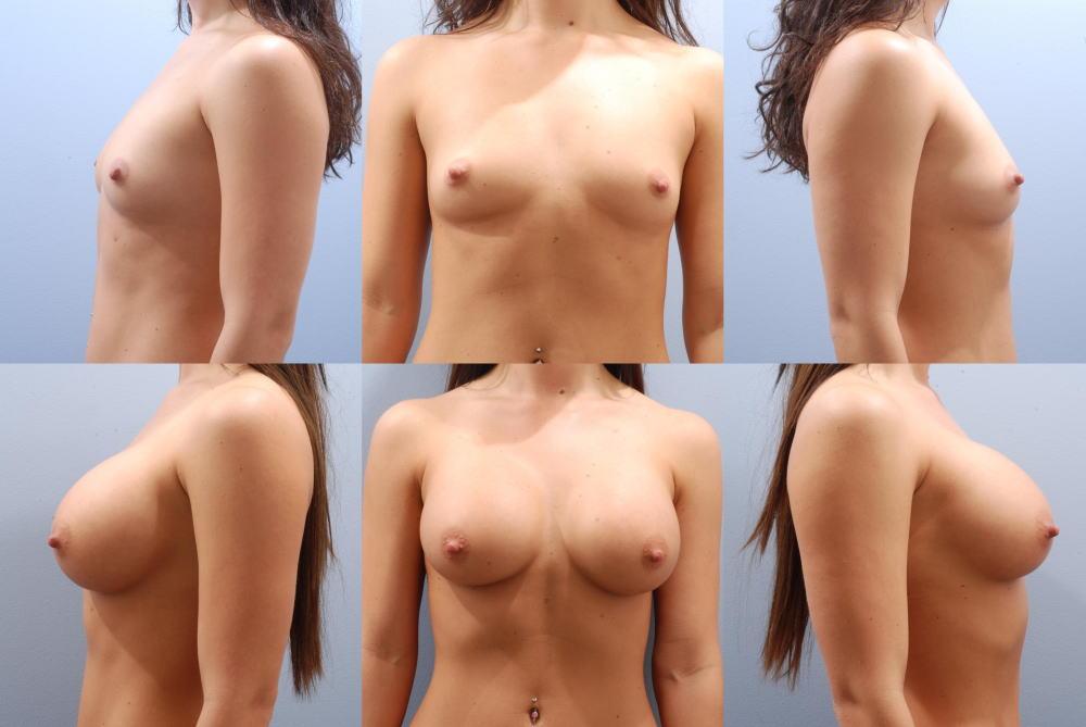 【衝撃】豊胸手術のビフォーアフターの比較。マジで自由自在なんやなwwwwwwwwwwww(画像あり)・2枚目