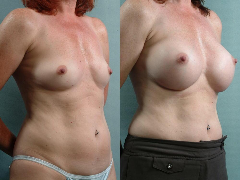 【衝撃】豊胸手術のビフォーアフターの比較。マジで自由自在なんやなwwwwwwwwwwww(画像あり)・20枚目