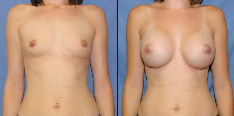 【衝撃】豊胸手術のビフォーアフターの比較。マジで自由自在なんやなwwwwwwwwwwww(画像あり)・3枚目