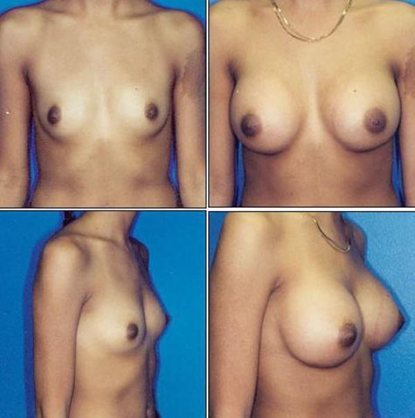 【衝撃】豊胸手術のビフォーアフターの比較。マジで自由自在なんやなwwwwwwwwwwww(画像あり)・4枚目