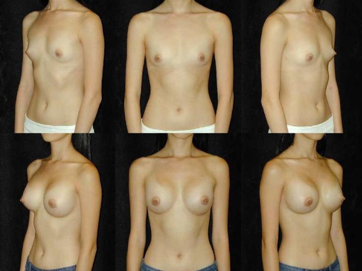 【衝撃】豊胸手術のビフォーアフターの比較。マジで自由自在なんやなwwwwwwwwwwww(画像あり)・5枚目