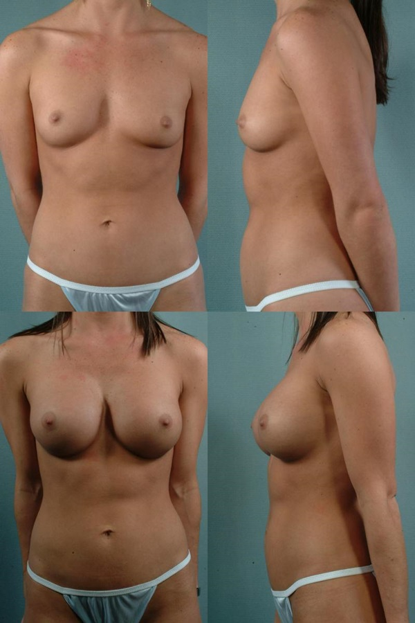 【衝撃】豊胸手術のビフォーアフターの比較。マジで自由自在なんやなwwwwwwwwwwww(画像あり)・6枚目