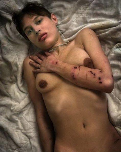 【閲覧注意】薬物中毒の女の写真やばくね?wwwwwww・12枚目