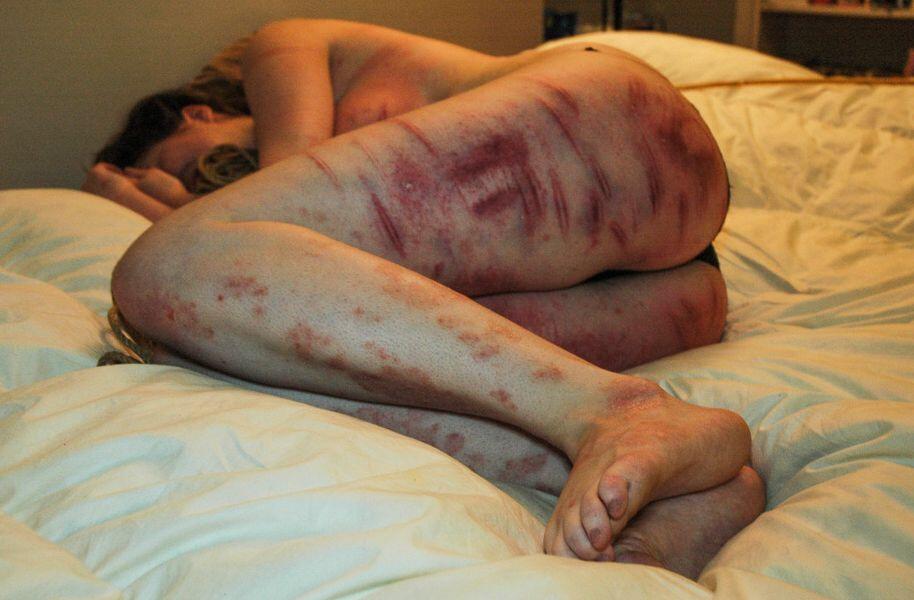 【閲覧注意】息してんの?裸で血まみれの女の子。(画像26枚)・20枚目