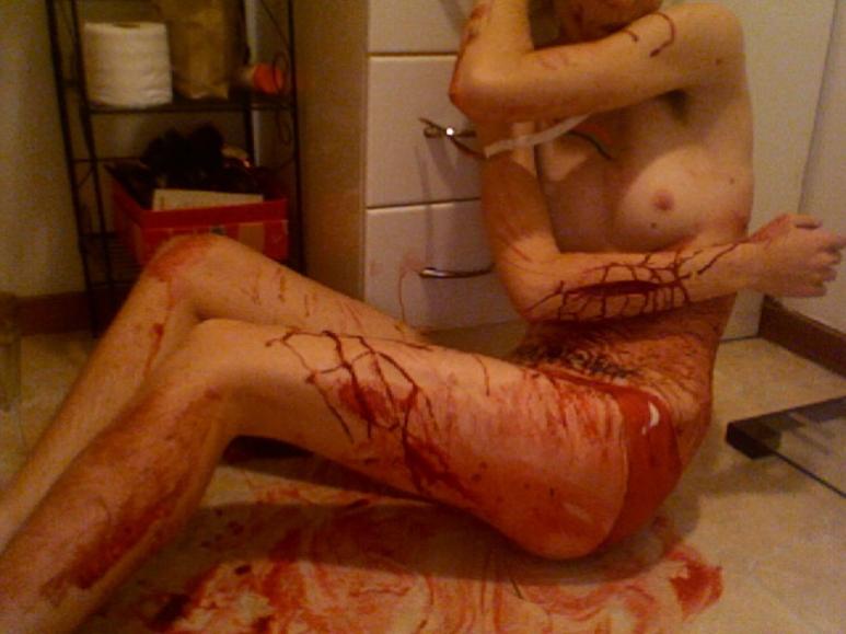【閲覧注意】息してんの?裸で血まみれの女の子。(画像26枚)・24枚目
