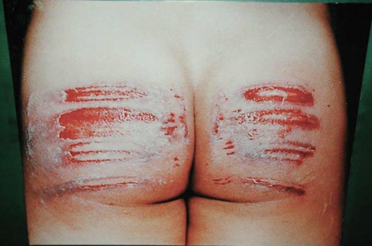 【閲覧注意】息してんの?裸で血まみれの女の子。(画像26枚)・3枚目