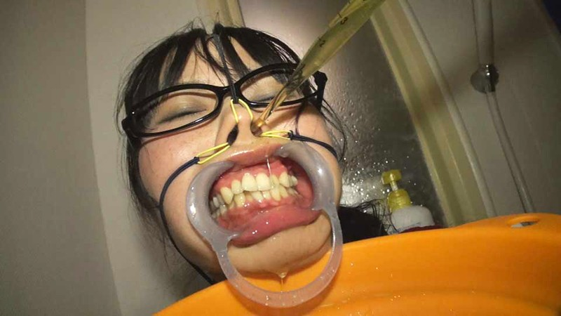 【鬼畜】開口器で広げらたままザーメンや尿を流し込まれてる上級者向けのSM画像集・20枚目